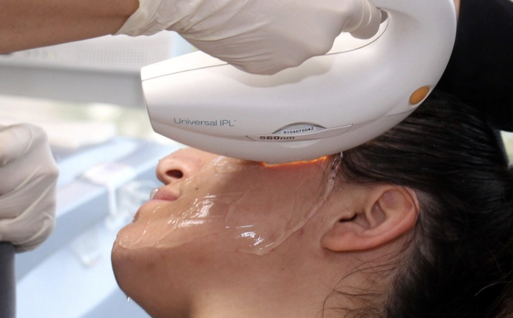 A woman is receiving an IPL Photo facial treatment, San Diego, CA.