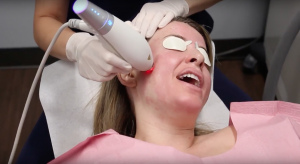 dermatologist applying ipl laser