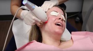 dermatologist applying ipl laser