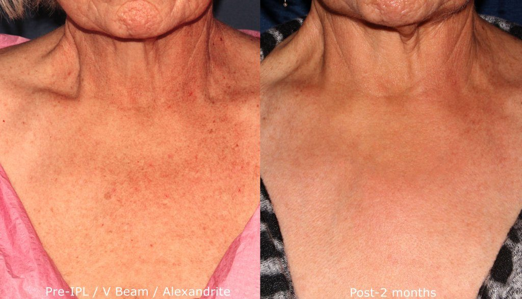 Actual un-retouched patient before and after IPL, Vbeam and Alexandrite laser treatment for chest rejuvenation by Dr. Groff. Disclaimer: Results may vary from patient to patient. Results are not guaranteed.