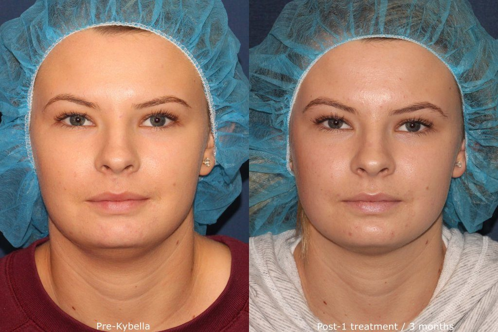 Actual un-retouched patient before and after Kybella injections to reduce submental fat under the chin by Dr. Fabi. Disclaimer: Results may vary from patient to patient. Results are not guaranteed.