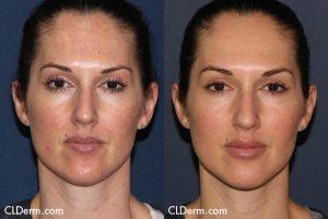 Laser-Dermatology-San-Diego-Sciton-Profile