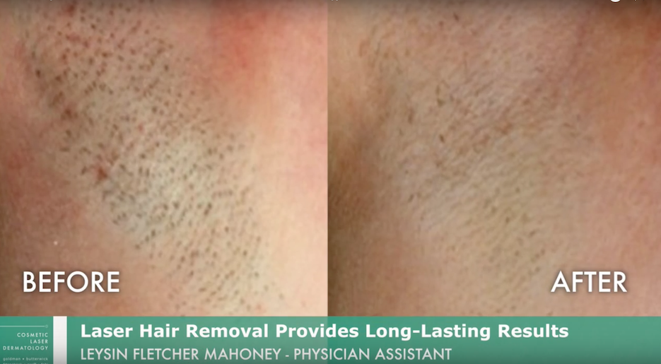 Actual un-retouched patient before and after laser treatment for hair removal by Leysin Fletcher, PA-C. Disclaimer: Results may vary from patient to patient. Results are not guaranteed.