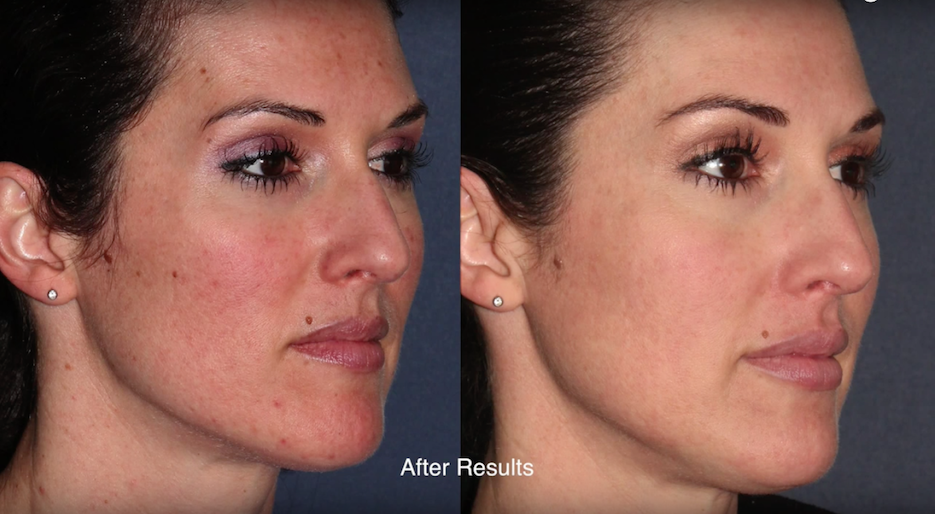 Actual un-retouched patient before and after Laser ResurFX treatment for facial rejuvenation by Dr. Goldman. Disclaimer: Results may vary from patient to patient. Results are not guaranteed.