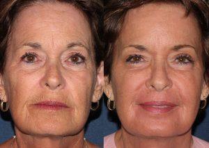 Laser Resurfacing Deep Wrinkles San Diego