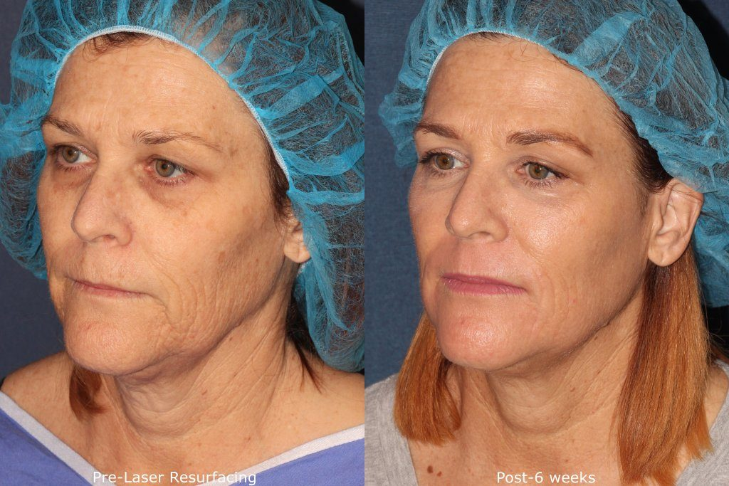 Actual un-retouched patient before and after Fraxel laser resurfacing treatment for facial rejuvenation by Dr. Fabi. Disclaimer: Results may vary from patient to patient. Results are not guaranteed.