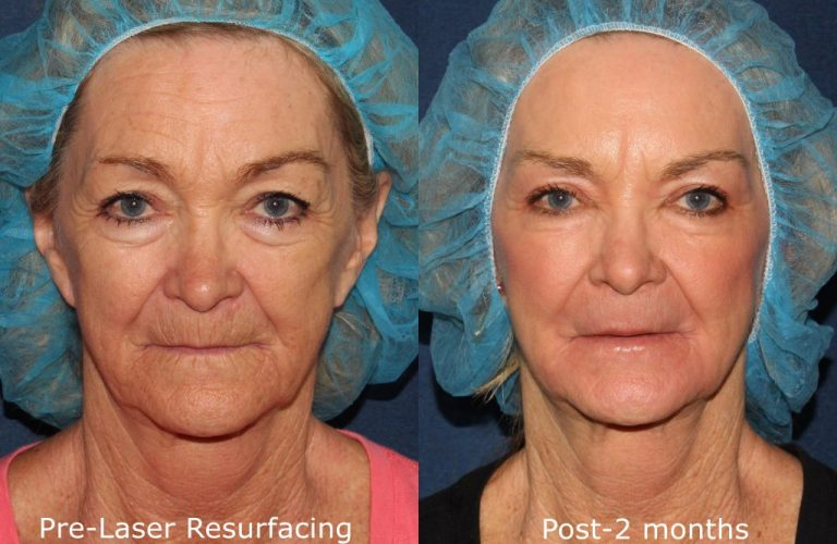 Actual un-retouched patient before and after laser resurfacing treatment for skin texture. Disclaimer: Results may vary from patient to patient. Results are not guaranteed.