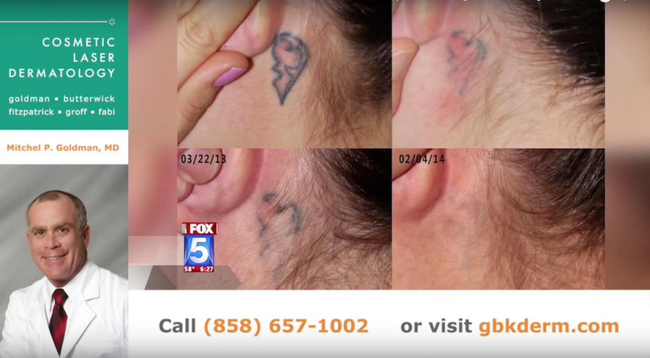 Actual un-retouched patient before and after PicoWay laser treatment for tattoo removal by Dr. Goldman. Disclaimer: Results may vary from patient to patient. Results are not guaranteed.