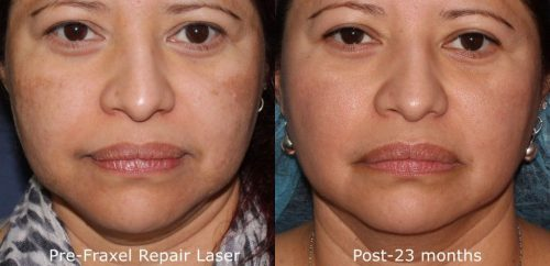 melasma laser skin treatment san diego