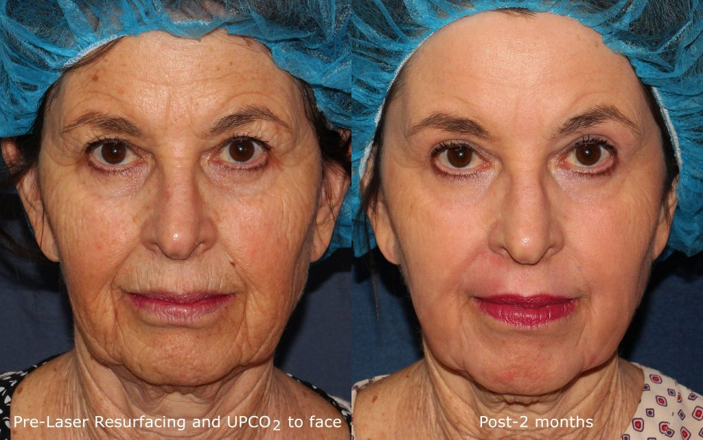 Actual un-retouched patient before and after CO2 laser treatment for deep wrinkles by Dr. Groff. Disclaimer: Results may vary from patient to patient. Results are not guaranteed.