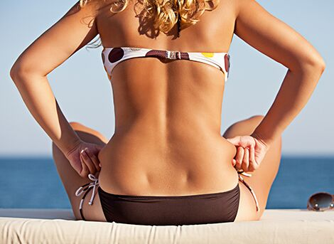 Liposculpture Experts in San Diego