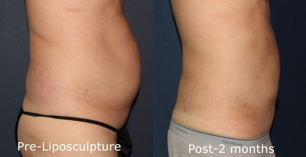 Actual unretouched patient before and after liposuction for abdominal reduction by Dr. Groff. Disclaimer: Results may vary from patient to patient. Results are not guaranteed.