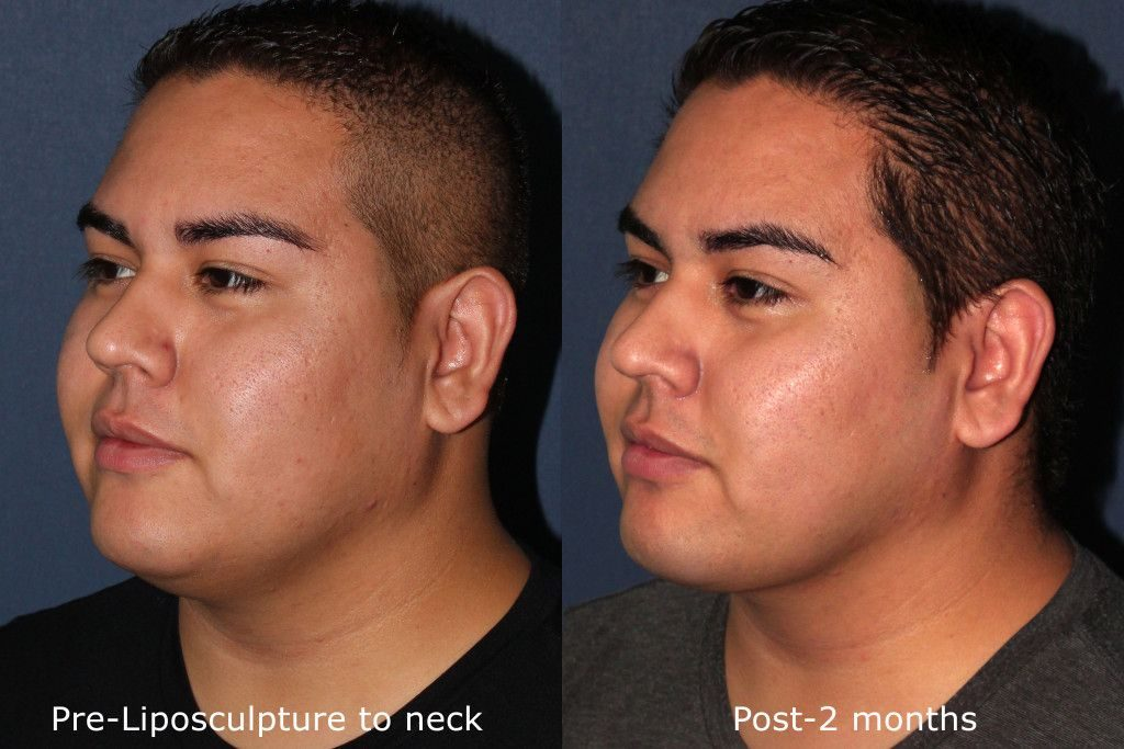 Actual un-retouched patient before and after liposculpture to reduce submental fat and contour the neck by Dr. Groff. Disclaimer: Results may vary from patient to patient. Results are not guaranteed.