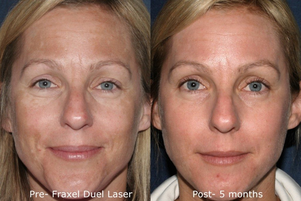 Actual un-retouched patient before and after Fraxel Dual to treat melasma by Dr. Groff. Disclaimer: Results may vary from patient to patient. Results are not guaranteed.