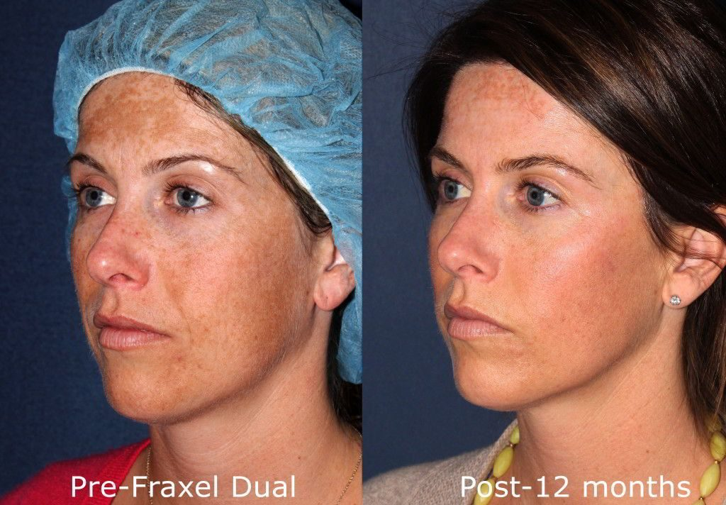 Actual un-retouched patient before and after Fraxel Dual treatment for melasma by Dr. Fabi. Disclaimer: Results may vary from patient to patient. Results are not guaranteed.