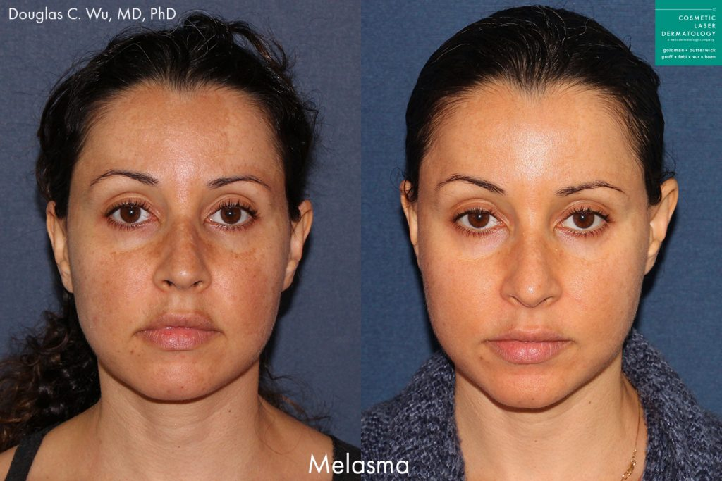 Laser resurfacing treatment to reduce discoloration caused by melasma by Dr. Wu. Disclaimer: Results may vary from patient to patient. Results are not guaranteed.