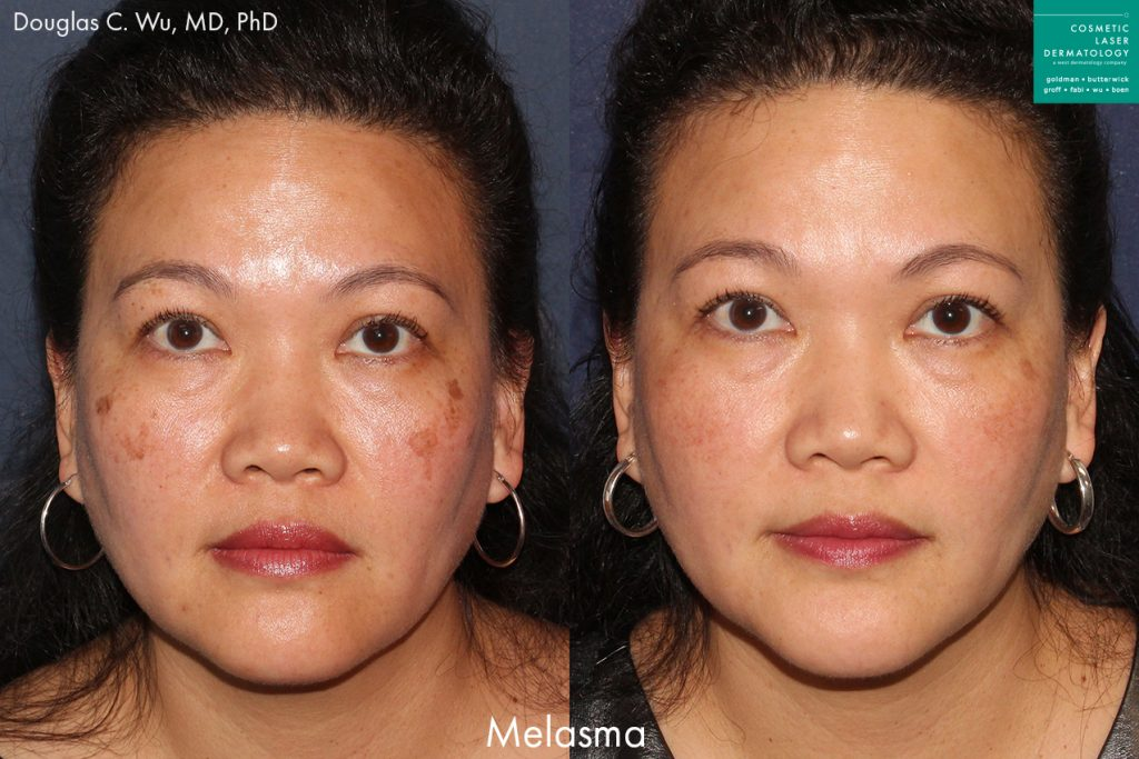 Laser resurfacing to treat melasma by Dr. Wu. Disclaimer: Results may vary from patient to patient. Results are not guaranteed.
