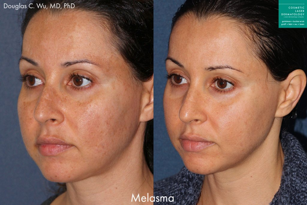 Laser treatment to reduce discoloration caused by melasma by Dr. Wu. Disclaimer: Results may vary from patient to patient. Results are not guaranteed.