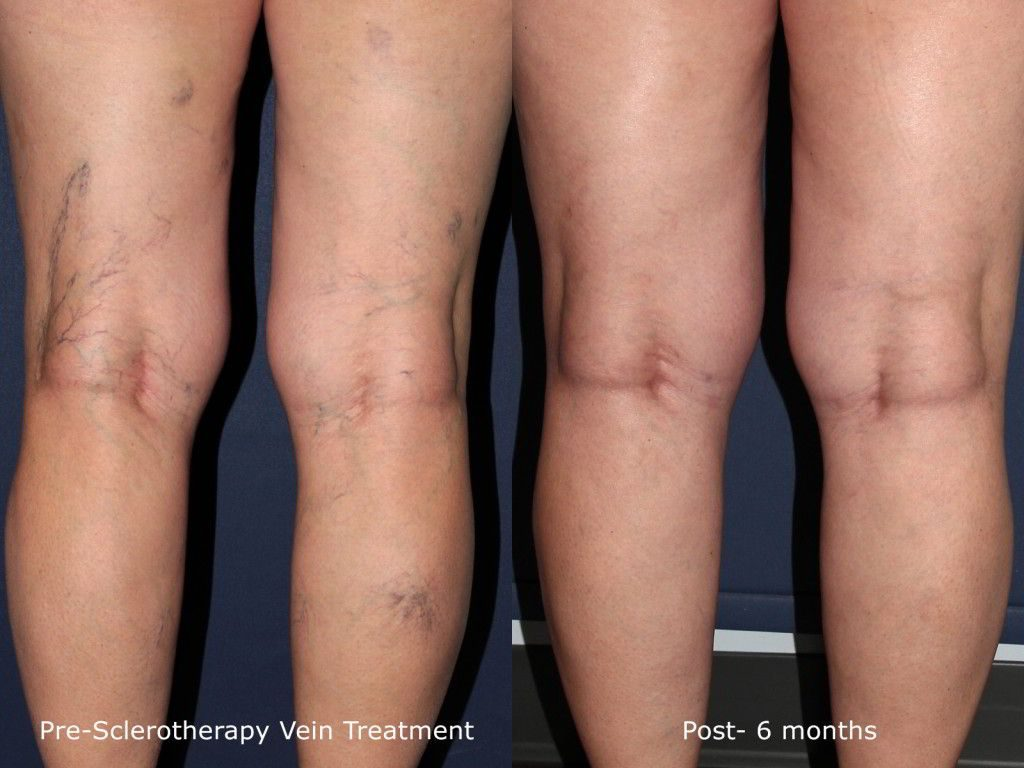 Actual unretouched patient before and after sclerotherapy to treat visible veins on the legs by Dr. Fabi. Disclaimer: Results may vary from patient to patient. Results are not guaranteed.