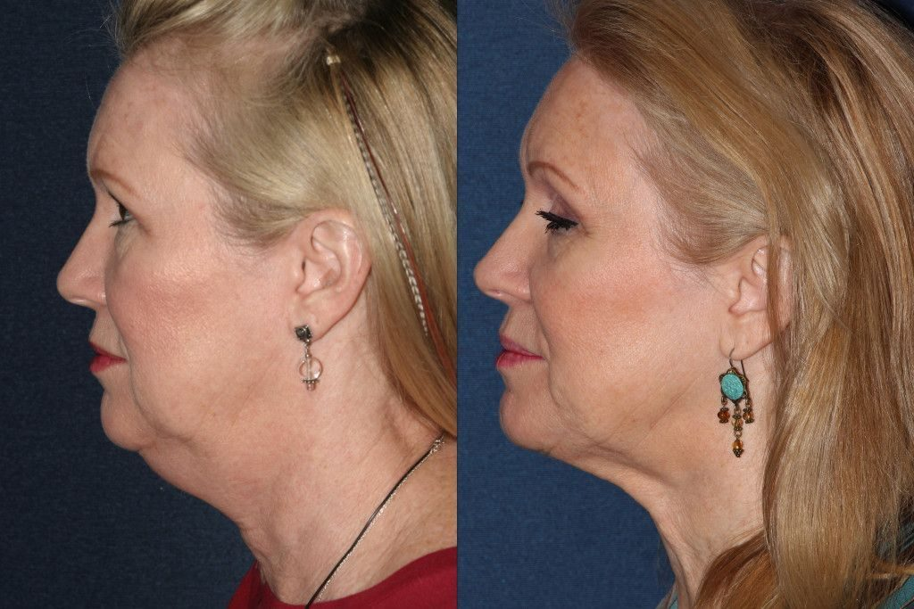 Actual un-retouched patient before and after Kybella injections to remove submental fat under the chin by Dr. Fabi. Disclaimer: Results may vary from patient to patient. Results are not guaranteed.