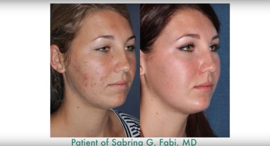 Actual un-retouched patient before and after PDT therapy to treat acne by Dr. Fabi. Disclaimer: Results may vary from patient to patient. Results are not guaranteed.