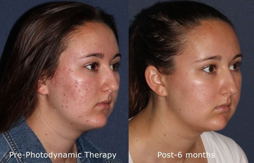 Actual un-retouched patient before and after photodynamic therapy (PDT) for acne by Dr. Fabi. Disclaimer: Results may vary from patient to patient. Results are not guaranteed.