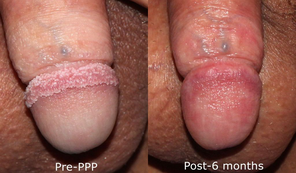 Actual unretouched patient before and after Lumenis UltraPulse Encore laser treatment to treat pearly penile papules by Dr. Groff. Disclaimer: Results may vary from patient to patient. Results are not guaranteed.