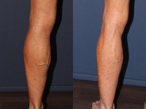 Phlebectomy Treatment Left Leg