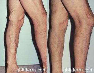 Phlebectomy Varicose Vein Reduction