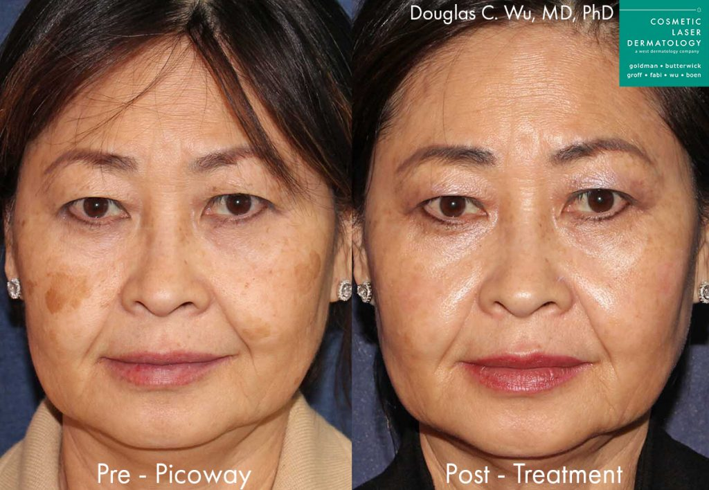 PicoWay laser used to treat brown spots and sun damage by Dr. Wu. Disclaimer: Results may vary from patient to patient. Results are not guaranteed.