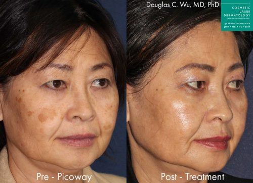 PicoWay laser to remove brown spots and treat sun damage by Dr. Wu. Treatment eliminates hyperpigmentation to create clearer, fresher skin.