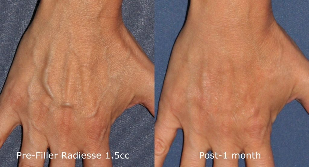 Actual un-retouched patient before and after Radiesse treatment for hand rejuvenation by Dr. Goldman. Disclaimer: Results may vary from patient to patient. Results are not guaranteed.