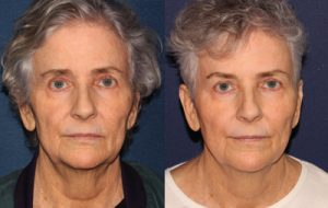 Facial Filler Treatment La Jolla