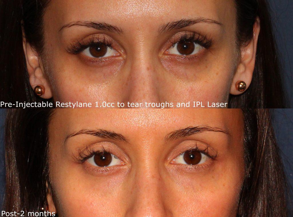 Restylane San Diego Ca Cosmetic Laser Dermatology