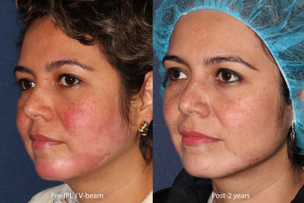 Actual un-retouched patient before and after IPL and VBeam laser treatment for rosacea by Dr. Fabi. Disclaimer: Results may vary from patient to patient. Results are not guaranteed.