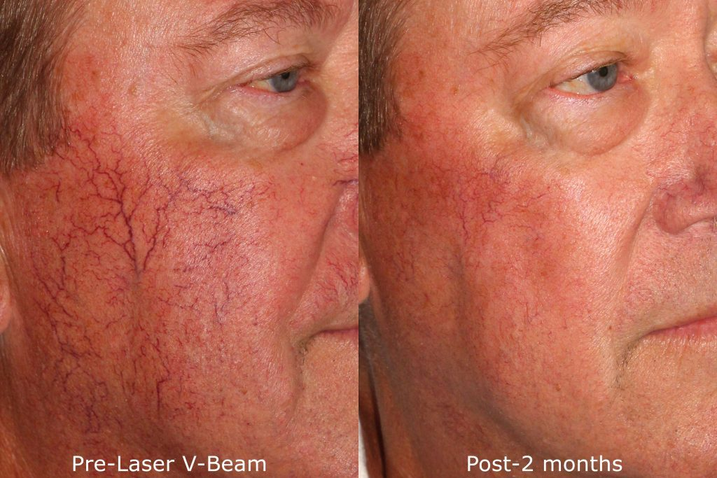 Actual un-retouched patient before and after VBeam to treat facial veins and rosacea by Dr. Groff. Disclaimer: Results may vary from patient to patient. Results are not guaranteed.