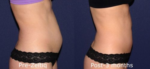 Before and after side image of CoolSculpting treatment on a female's abdomen performed by Dr. Wu at our San Diego medi spa