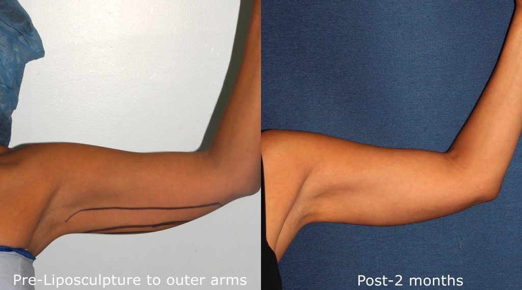 Actual un-retouched patient before and after liposculpture to contour upper arms by Dr. Fabi. Disclaimer: Results may vary from patient to patient. Results are not guaranteed.