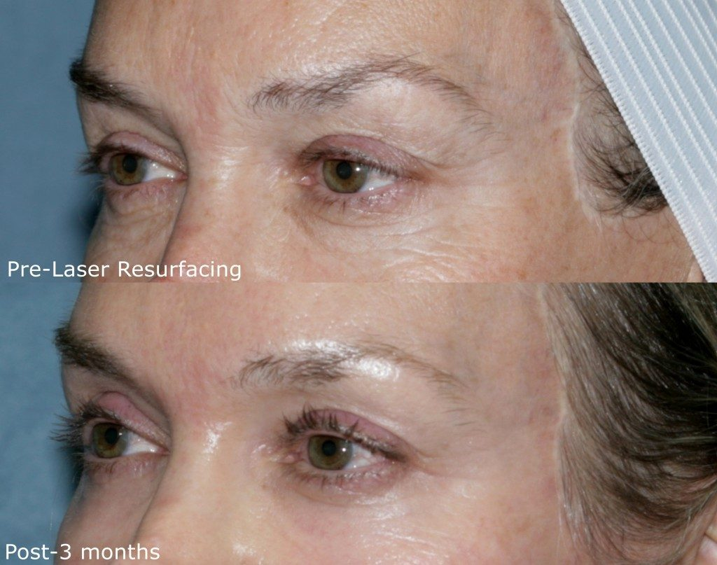 Actual un-retouched patient before and after Affirm laser treatment for wrinkle reduction by Dr. Groff. Disclaimer: Results may vary from patient to patient. Results are not guaranteed.