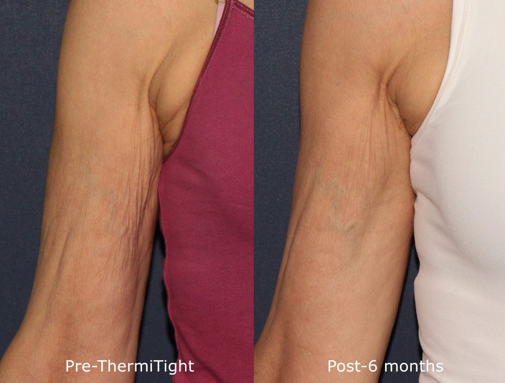 Actual un-retouched patient before and after ThermiTight treatment to tighten crepey arm skin by Dr. Fabi. Disclaimer: Results may vary from patient to patient. Results are not guaranteed.