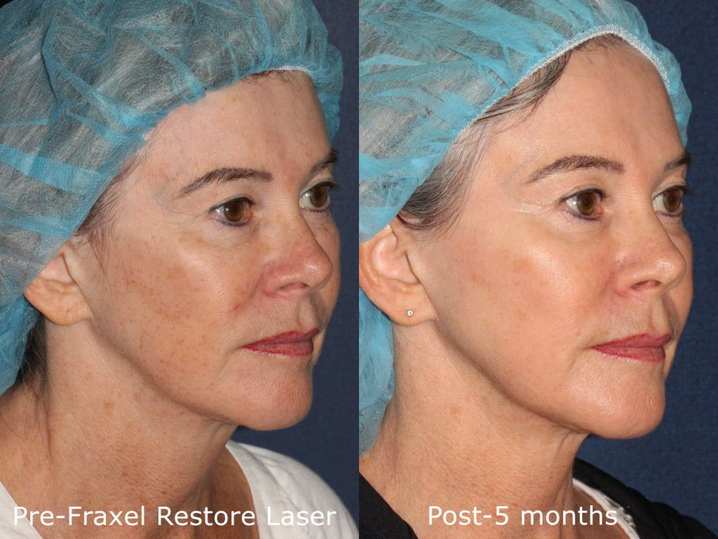 Actual unretouched patient before and after Fraxel Restore for sun damage and skin rejuvenation by Dr. Fabi. Disclaimer: Results may vary from patient to patient. Results are not guaranteed.
