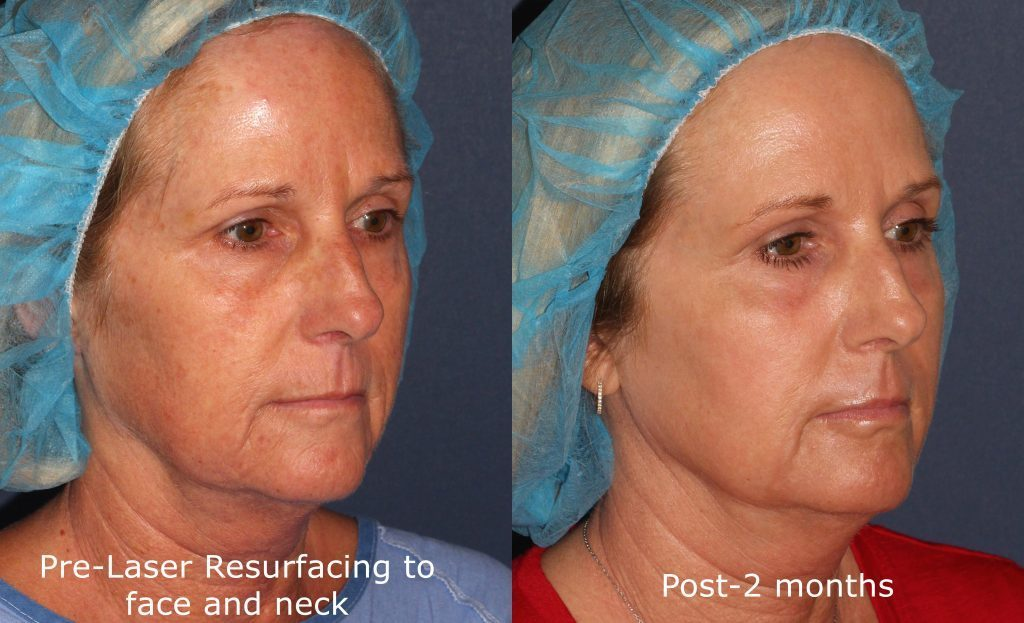 Actual unretouched patient before and after Fraxel Restore to rejuvenate the face and neck by Dr. Groff. Disclaimer: Results may vary from patient to patient. Results are not guaranteed.