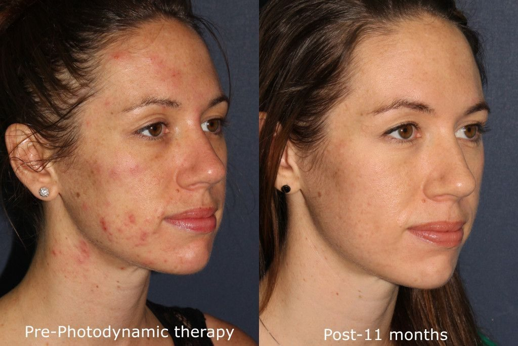 Actual un-retouched patient before and after photodynamic therapy (PDT) for acne scars by Dr. Groff. Disclaimer: Results may vary from patient to patient. Results are not guaranteed.