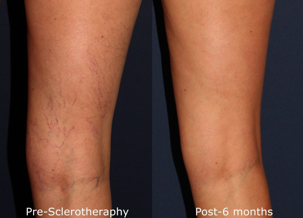 Actual unretouched patient before and after sclerotherapy to treat visible leg veins by Dr. Wu. Disclaimer: Results may vary from patient to patient. Results are not guaranteed.