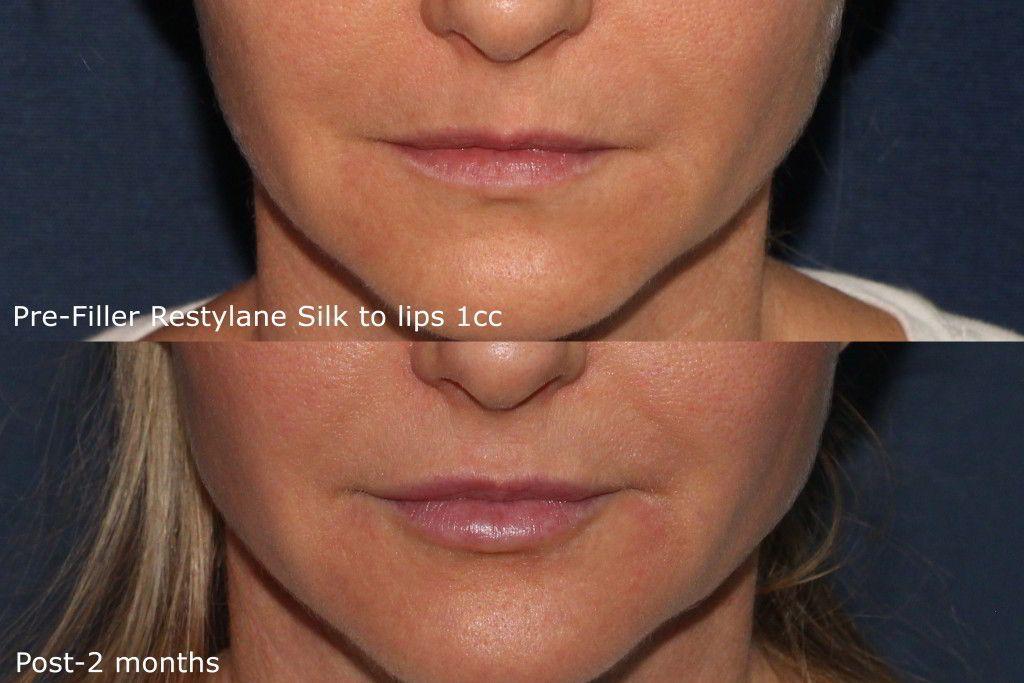 Restylane Silk San Diego, CA | Cosmetic Laser Dermatology