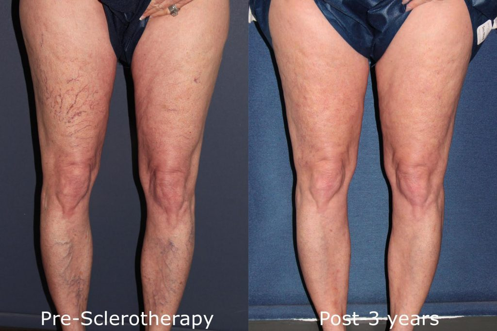 Actual unretouched patient before and after sclerotherapy to treat visible leg veins by Dr. Goldman. Disclaimer: Results may vary from patient to patient. Results are not guaranteed.