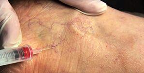 spider vein removal