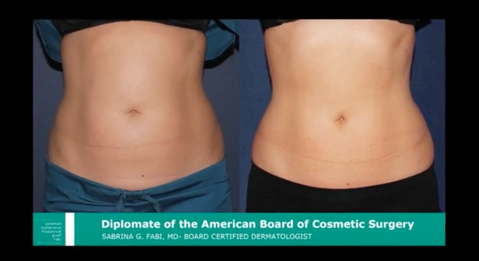 Actual un-retouched patient before and after Coolsculpting treatment to reduce abdominal fat by Dr. Fabi. Disclaimer: Results may vary from patient to patient. Results are not guaranteed.