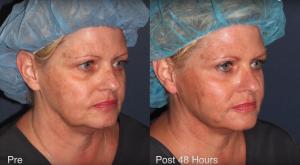 Non-Surgical Facelift San Diego