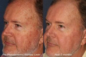 Skin Cancer Treatment Experts San Diego Ca Clderm